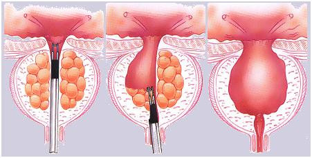 Prostate Laser Surgery TURP