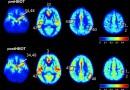 Un estudio sugiere que el Alzheimer 'podría detenerse' con oxigenoterapia