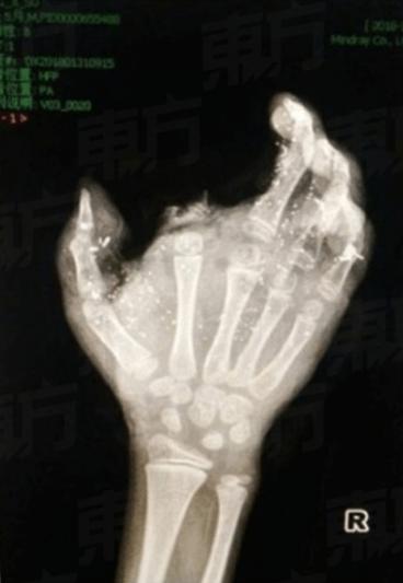 Tangan kanan korban