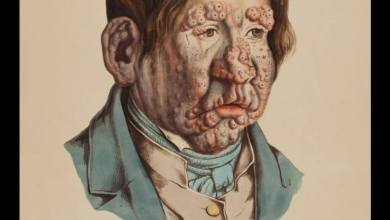 Photo of Leprosy Prevention [Hansen's disease]