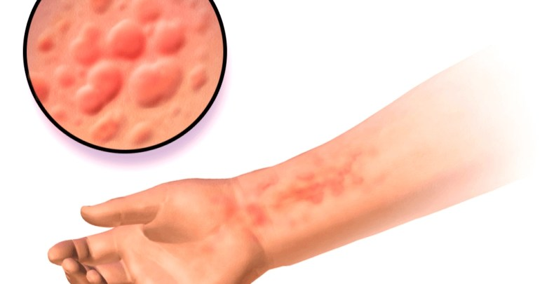 causes of urticaria