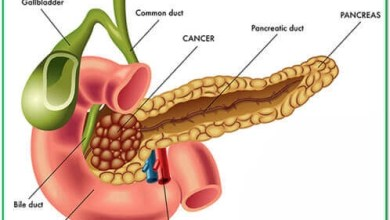 Adenocarcinoma of the pancreas