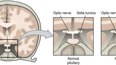 Pituitary tumour