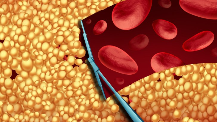 The Ultimate Cholesterol-Lowering Diet: Reclaiming Health Through Whole Foods