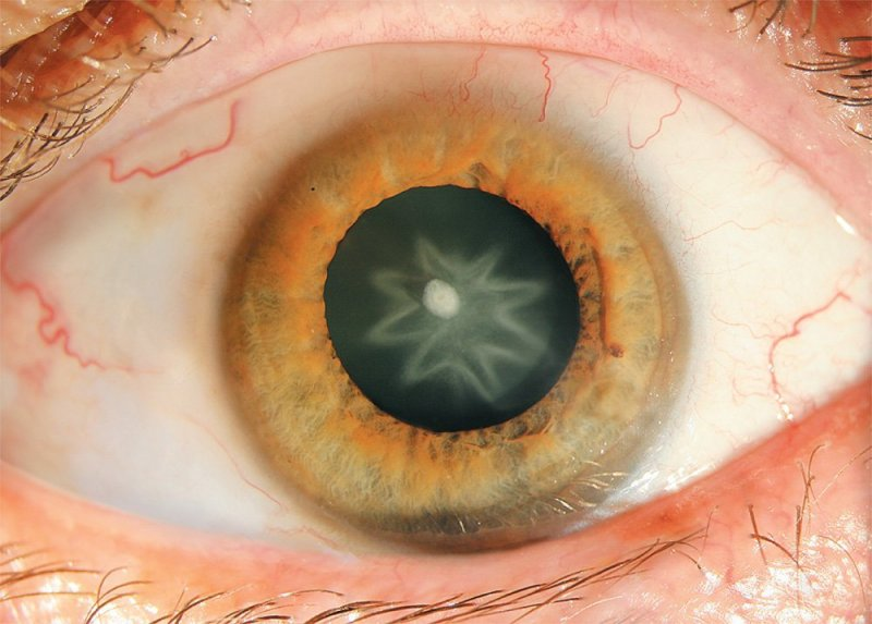 The star cataract strange medical case