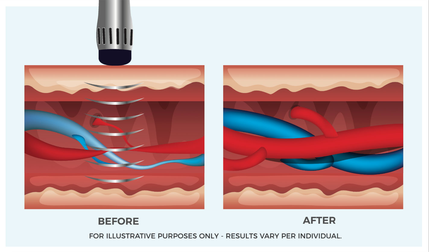 ED Shockwave Therapy