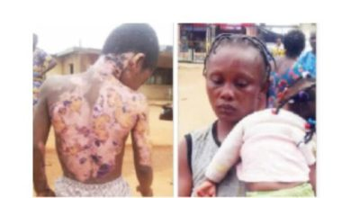 Photo of Nursing Mother Sets 10 year Old Brother-in-Law Ablaze in Lagos