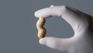 What Causes a Food Allergy? Here's Where I Think We Should Look
