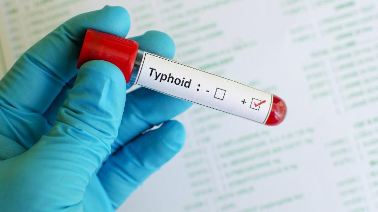 typhoid generic_1525997164952.jpg.jpg