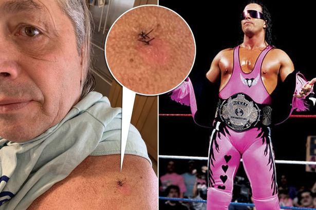 Bret The Hitman Hart skin cancer