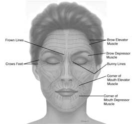 botox facial muscle diagram 12v wiring injections for wrinkles - complications and costs
