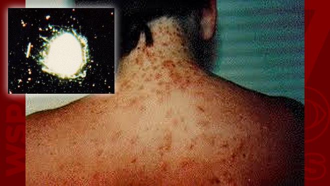 sea lice WEB_198752