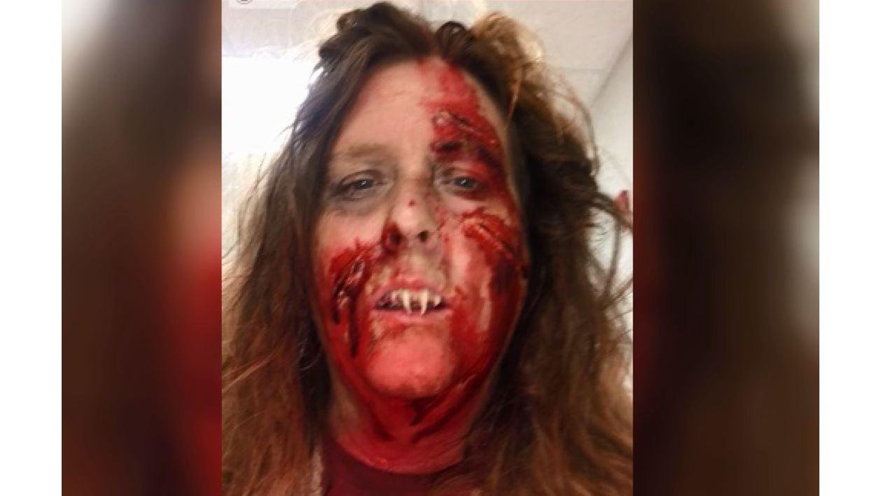 Woman_seeks_help_when__Devil_Teeth__get__0_20181029104459
