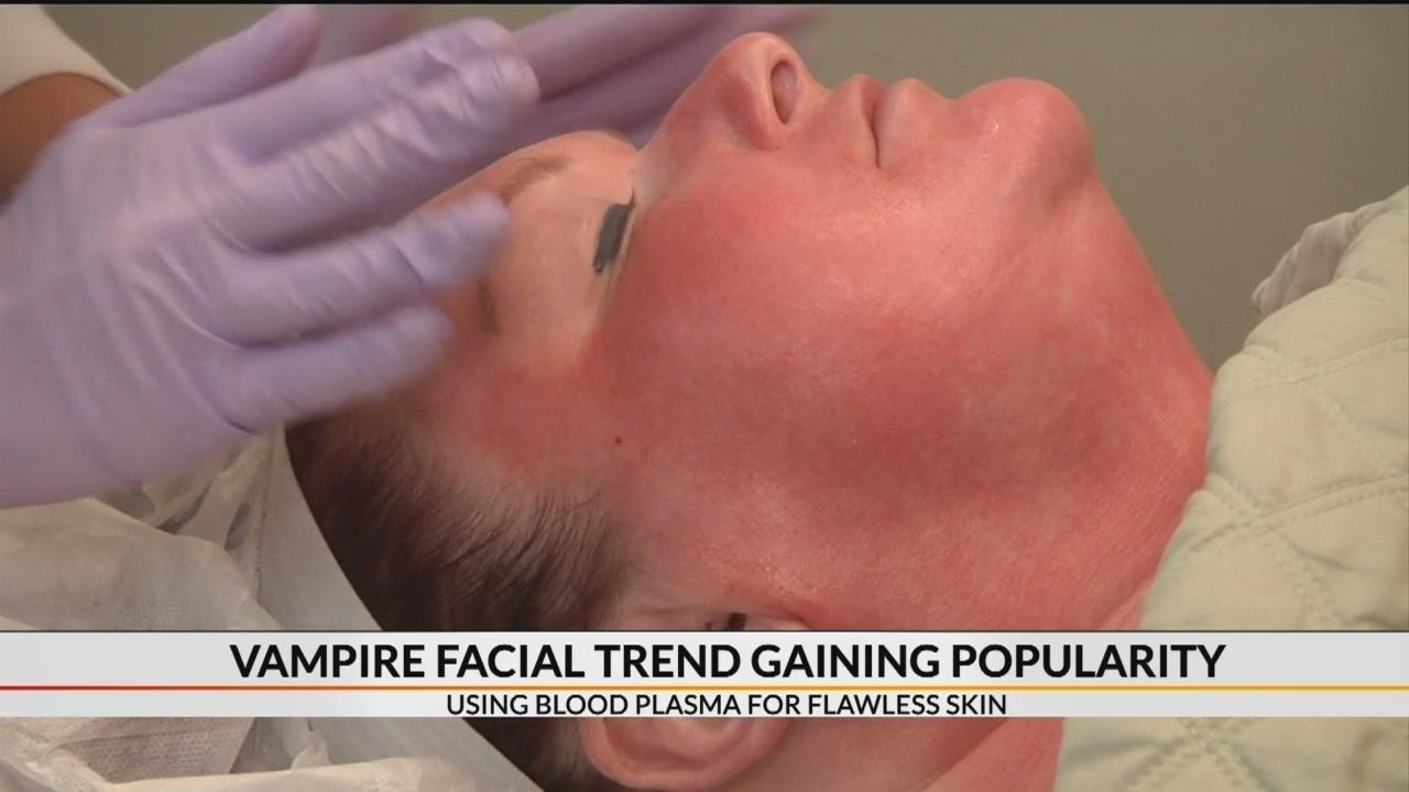 Vampire Facial trend gaining popularity in Upstate