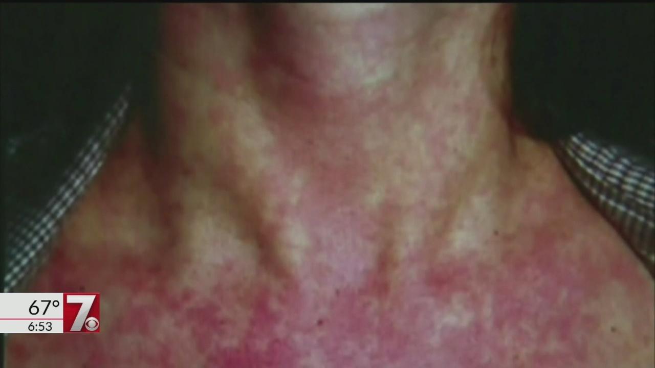Measles_case_confirmed_in_SC_0_20180823120119