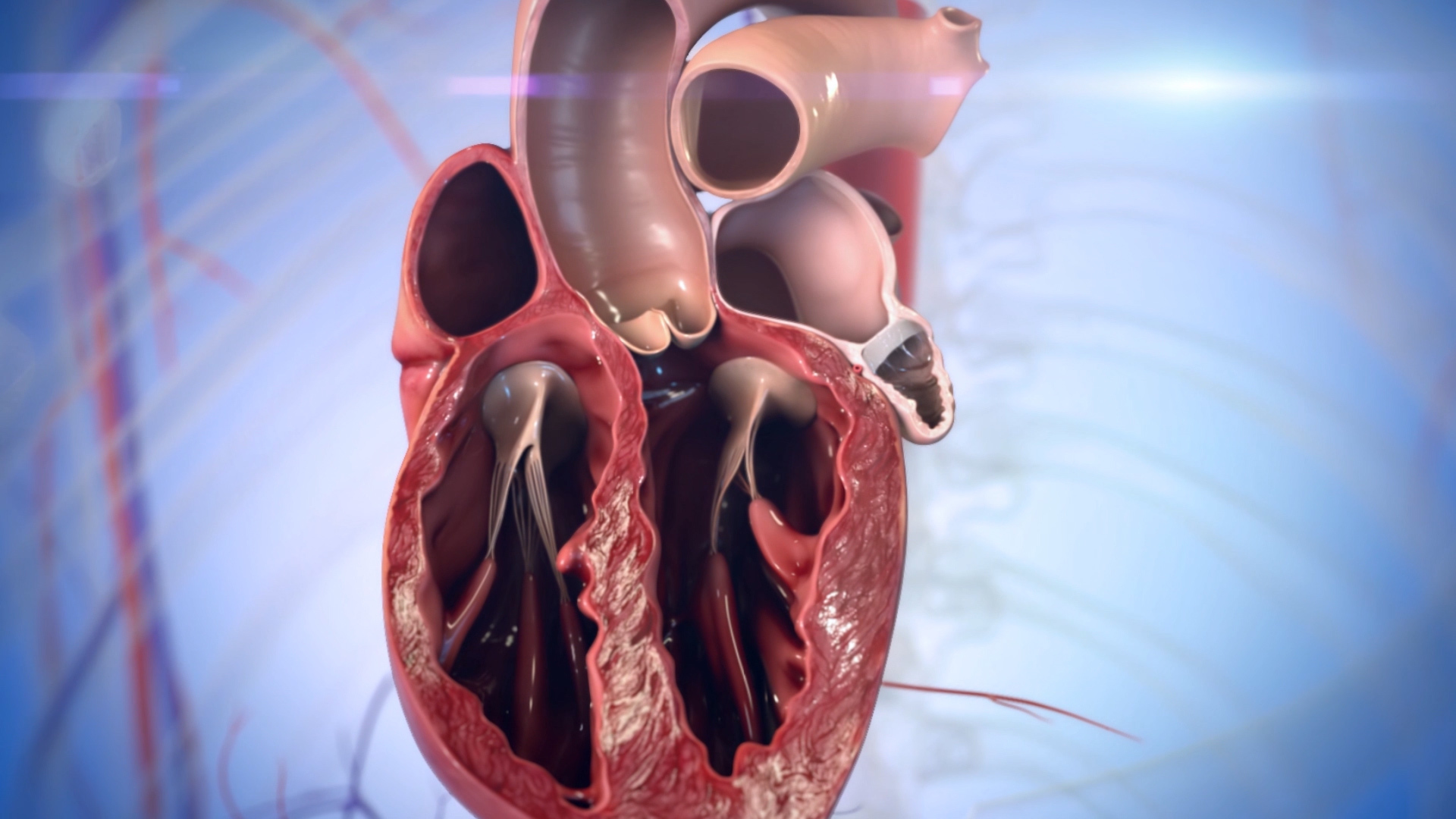 Minimally Invasive Procedure Reduces Risk of Stroke in those with Atrial Fibrillation