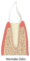 Gesunder Zahn