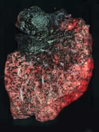 The black lung patient in the x-ray above had the lung pictured above removed during a transplant operation.