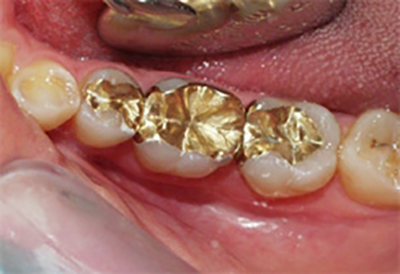 Gold inlays  The Dental Practice