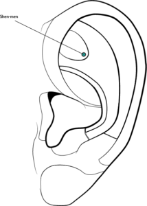 A is for Auricular Acupressure – Becky Wyland