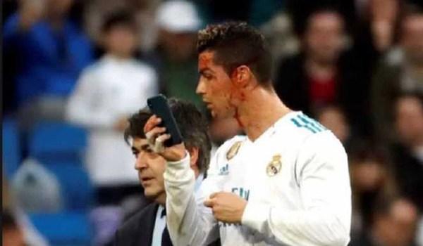 Cedera Cristiano Ronaldo Tidak Parah Ungkap Zinedine Zidane