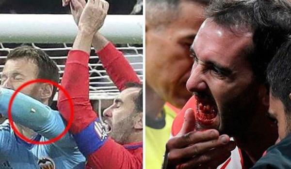 Saya Tidak Bisa Senyum Dulu Ungkap Diego Godin