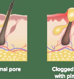 ximino what is acne  [ 1228 x 1000 Pixel ]