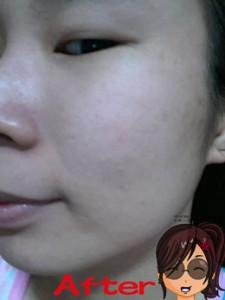 blog-yougunlee-after