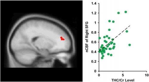 מחקר מוח קנאביס