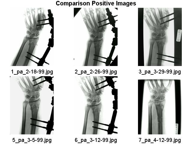 Digital X-Ray Imaging X-Ray Scanning X-Ray Duplication X