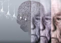 Αναμένεται ο τριπλασιασμός των πασχόντων από άνοια και Αλτσχάιμερ εώς το 2050