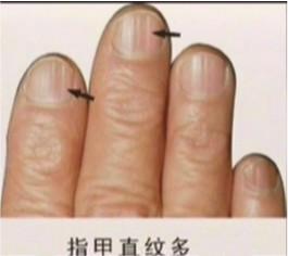 如何通過指甲檢視健康--學佛網