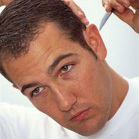 Haarausfall Toupets Verbergen Geheimratsecken Frisuren