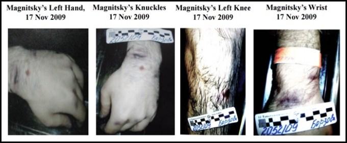 Magnitsky's Postmortem Images 2009