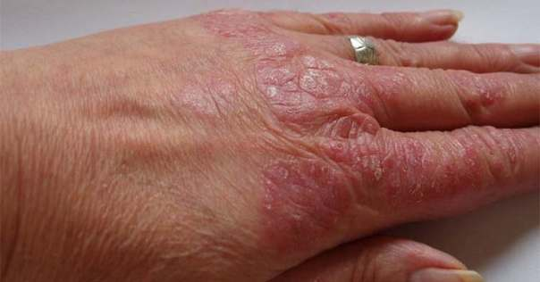 How to Get Rid of Psoriasis Naturally Home Remedies-#BigRemediespictures