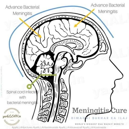 powerful-dua-Meningitis-cure-in-islam-gardan-tor-dimaghi-bukhar-Advance Bacterial-yaALLAH