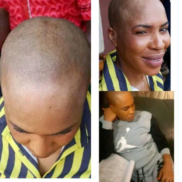 fathia bald