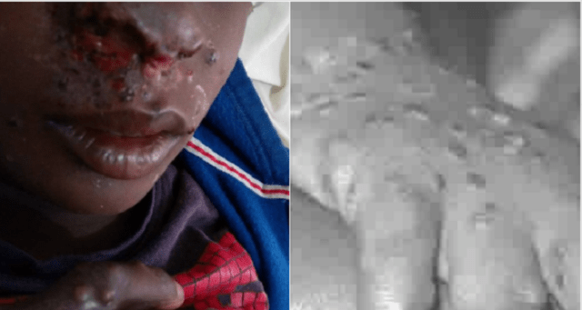 monkeypox hits bayelsa