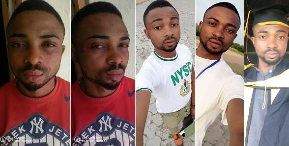 Corps member narrates how he was assaulted by some Katsina State police officers while returning from church