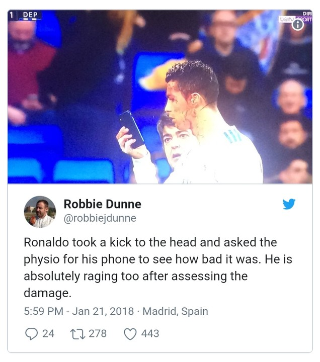 Moment Ronaldo borrowed doctor's phone to check his facial