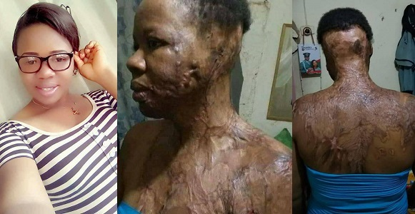 UNIZIK graduate attacked with acid by unknown man in Port-Harcourt (photos)