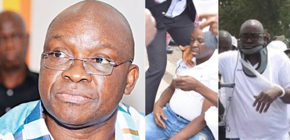 Fayose brother cries