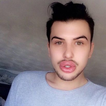 Kylie Jenner fan spends N6.7m on lip filler to look like the star