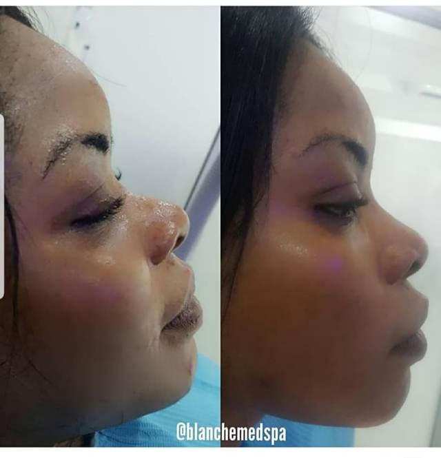Laura Ikeji removes