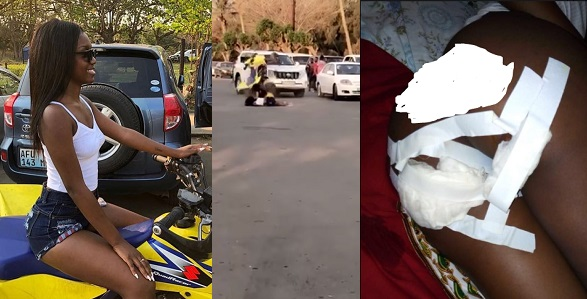 Image result for Slay Queen lands in Hospital with broken buttocks after bike accident (Photos)