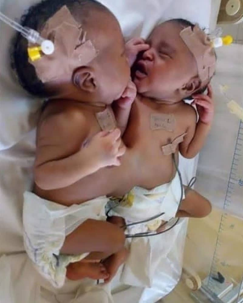 Nigerian doctors separate conjoined twins