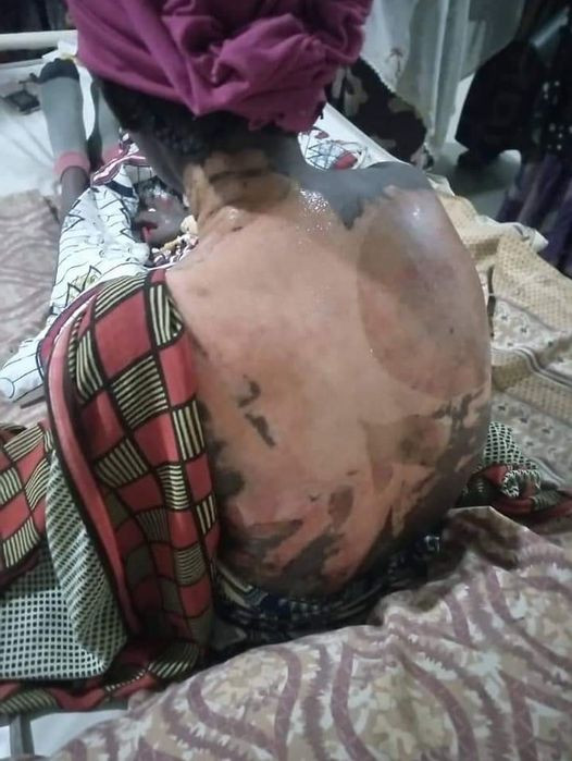Shocking as Woman pours hot water on her co-wife and 4-year-old stepdaughter in Kano