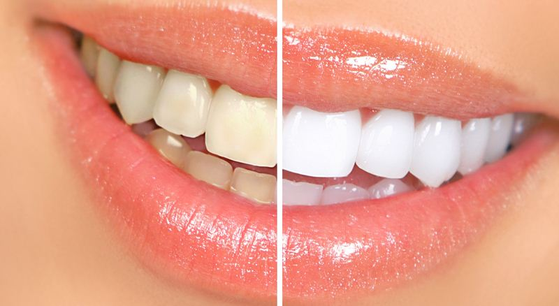 How to Get White Teeth Naturally?