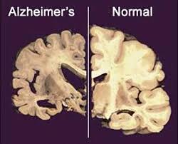 Alzheimer disease – a neurodegenerative disease