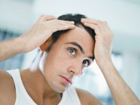 How can men cover baldness